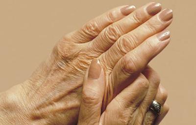 چگونه پیری پوست دست را درمان کنیم؟